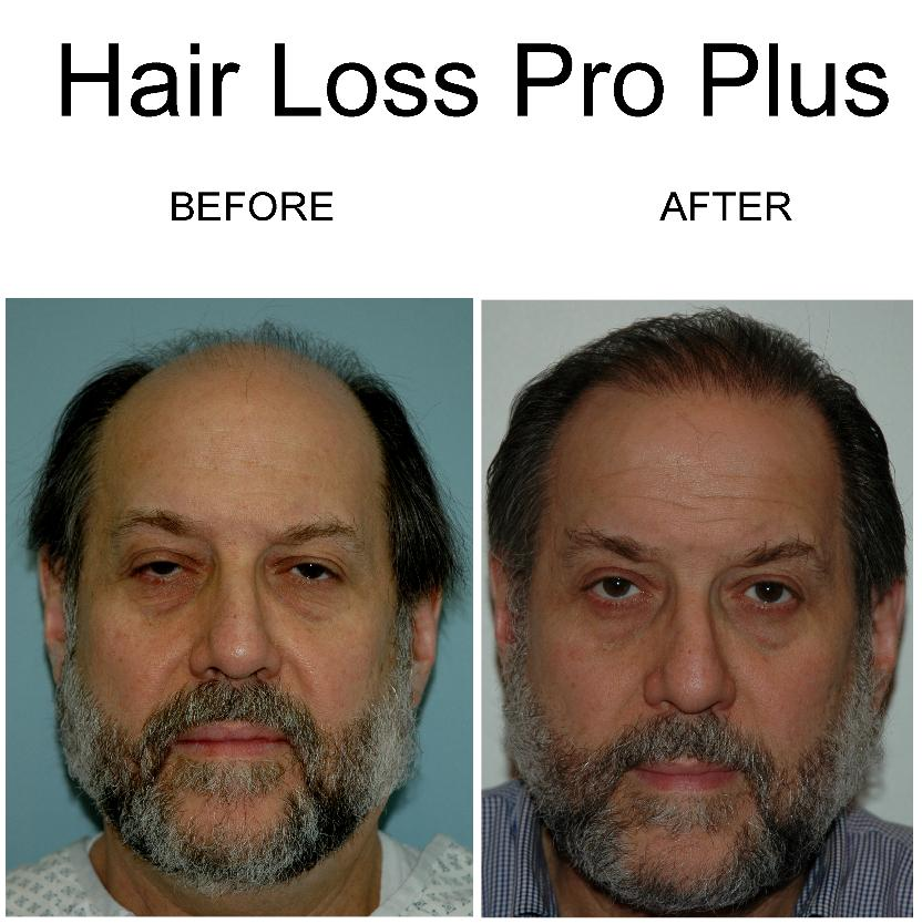 Hair_Loss_Pro_Plus_before_after