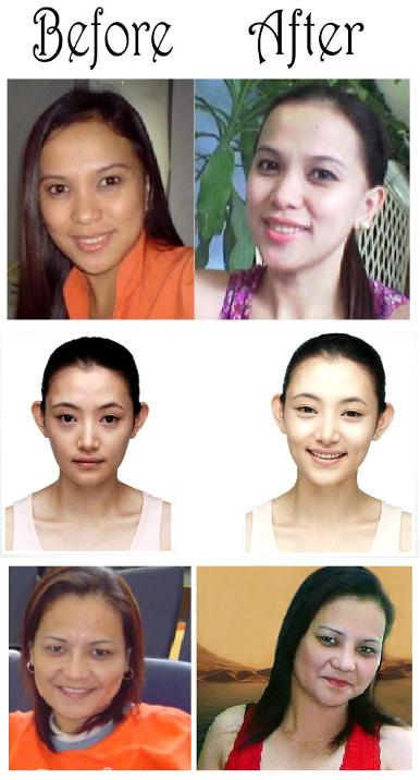 before_after_skin_whitening_cream