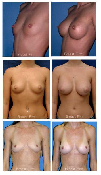beforeore_after_breast
